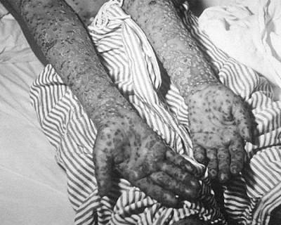 Độc chiêu chữa bệnh khác biệt nhất thế giới loài người